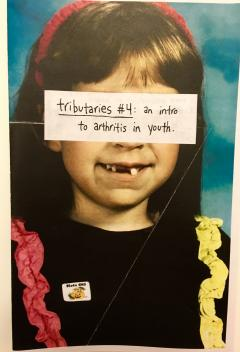 Tributaries. 4 : An intro to arthritis in youth